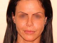 Case 1 - Lipofilling