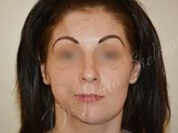 Case 2 - Lipofilling