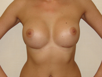 Cazul 11: Augmentare mamara subfasciala, implanturi anatomice Mentor® 395 cm³
