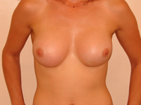 Cazul 13: Augmentare mamara (tehnica muscle splitting biplane), implanturi anatomice Mentor® 330 cm³