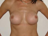 Cazul 14: Augmentare mamara (tehnica muscle splitting biplane), implanturi anatomice Mentor® 380 cm³