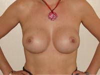 Cazul 17: Augmentare mamara (tehnica muscle splitting biplane), implanturi anatomice Mentor® 380 cm³