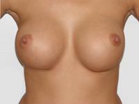 Cazul 2: Augmentare mamara subfasciala, implanturi anatomice Mentor® 380 cm³