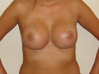 Cazul 23: Augmentare mamara subfasciala, implanturi anatomice Mentor® 380 cm³