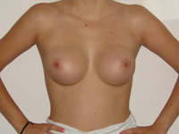 Cazul 27: Augmentare mamara subfasciala, implanturi anatomice Mentor® 225 cm³