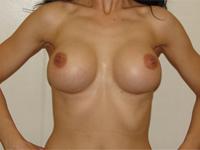 Cazul 38: Augmentare mamara (tehnica muscle splitting biplane) cu mamopexie interna dreapta, implanturi anatomice Mentor® 330 cm³