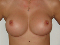 Cazul 43: Augmentare mamara (tehnica muscle splitting biplane), implanturi anatomice Mentor® 330 cm³