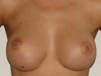 Cazul 7: Augmentare mamara subfasciala, implanturi anatomice Mentor® 330 cm³
