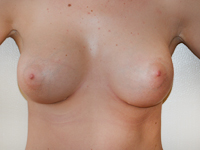 Cazul 64: Augmentare mamara (tehnica muscle splitting biplane), implanturi anatomice Mentor® 430 cm³ (san drept) si 380 cm³ (san stang)