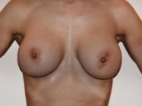 Cazul 66: Augmentare mamara (tehnica muscle splitting biplane) si mamopexie interna stanga, implanturi anatomice Mentor® 390 cm³
