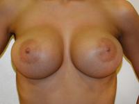Cazul 69: Augmentare mamara (tehnica muscle splitting biplane) si mamopexie interna, implanturi anatomice Mentor® 390 cm³