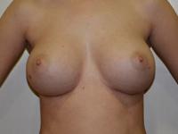 Caz 79: Augmentare mamara (tehnica muscle splitting biplane), implanturi anatomice Mentor® 380 cm³