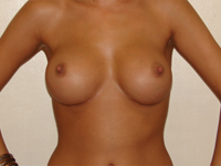 Case 10 : Subfascial breast augmentation, Mentor® anatomical implants 395 cc