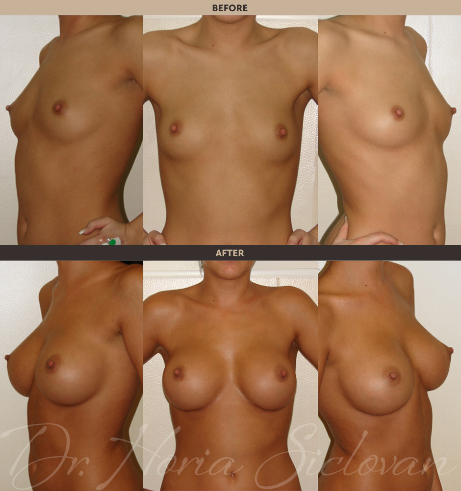 увеличение груди сразу после овуляции