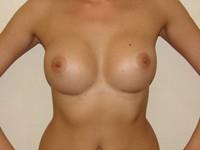 Case 11 : Subfascial breast augmentation, Mentor® anatomical implants 395 cc