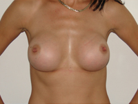 Case 14 : Muscle splitting biplane breast augmentation, Mentor® anatomical implants 380 cc