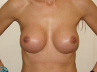 Case 16 : Muscle splitting biplane breast augmentation, Mentor® anatomical implants 380 cc