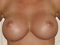 Case 18 : Muscle splitting biplane breast augmentation, Mentor® anatomical implants 380 cc