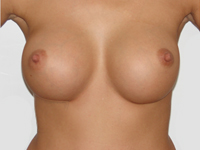 Case 2 : Subfascial breast augmentation, Mentor® anatomical implants 380 cm³