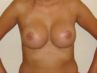 Case 23 : Subfascial breast augmentation, Mentor® anatomical implants 380 cc