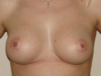 Case 26 : Subfascial breast augmentation, Mentor® anatomical implants 300 cc