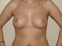 Case 26 : Subfascial breast augmentation, Mentor® anatomical implants 300 cc