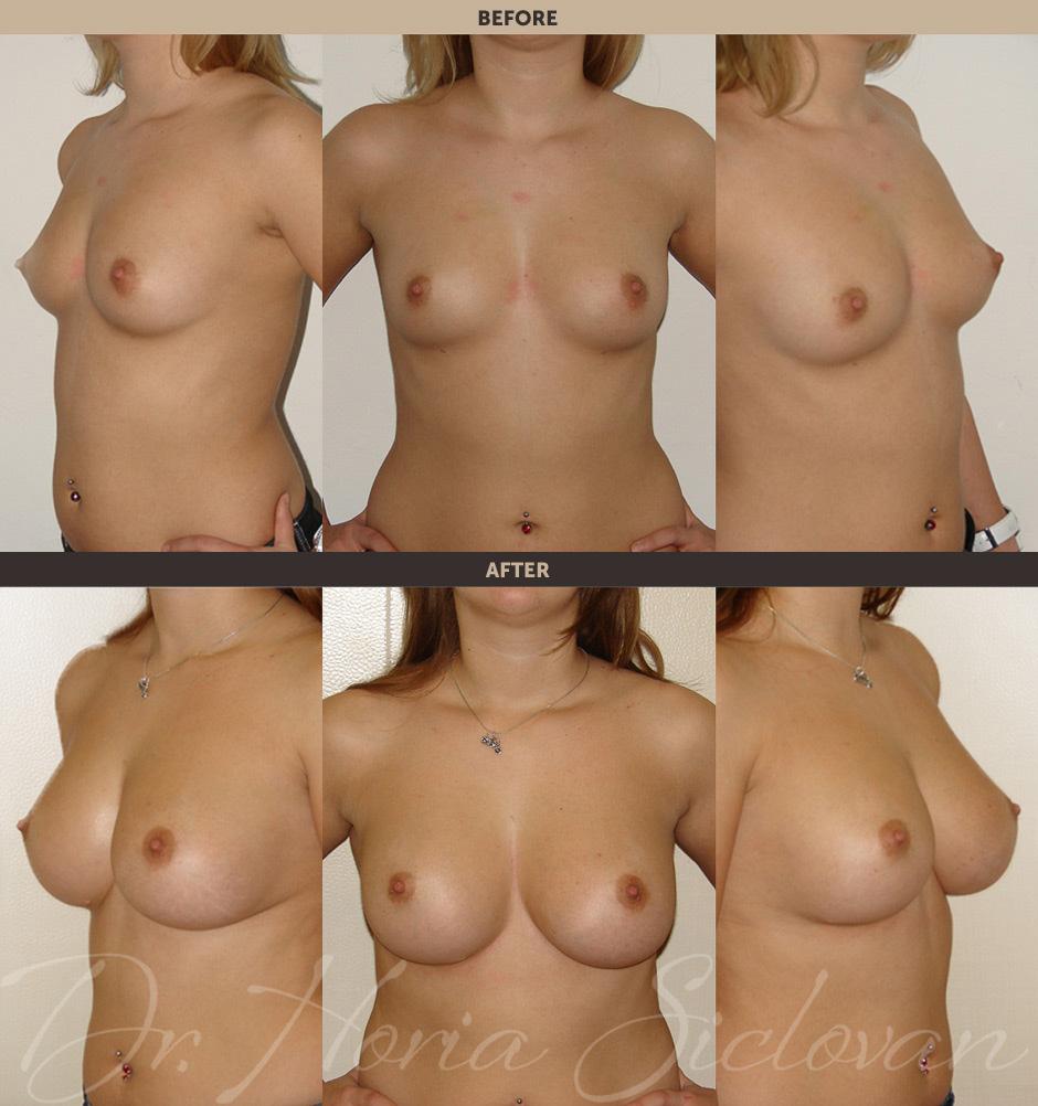 Отзывы по увеличению груди без операции