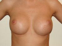 Case 29 : Subfascial breast augmentation, Mentor® round implants 275 cc