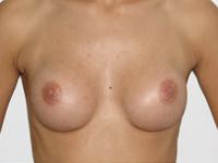 Case 30 : Subfascial breast augmentation, Mentor® round implants 175 cc