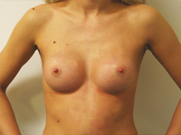 Case 31 : Subfascial breast augmentation, Mentor® round implants 200 cc