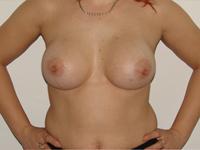 Case 34 : Subfascial breast augmentation, Mentor® round implants 275 cc