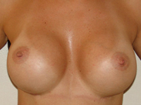 Case 36 : Preoperative : Submuscular breast augmentation, Natrelle® anatomical implants 315 cc. Postoperative : Subfascial breast augmentation, Mentor® anatomical implants 390 cc