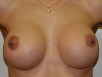Case 38 : Muscle splitting biplane breast augmentation and right breast internal mastopexy, Mentor® anatomical implants 330 cc