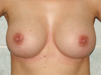 Case 39 : Subfascial breast augmentation, Mentor® anatomical implants 300 cc