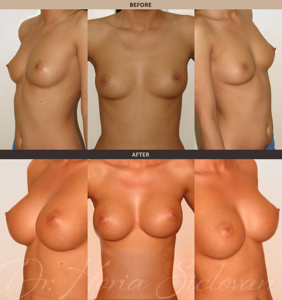 Если в грудном импланте воздух