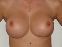 Case 43 : Muscle splitting biplane breast augmentation, Mentor® anatomical implants 330 cc