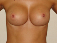 Case 48 : Muscle splitting biplane breast augmentation, Mentor® anatomical implants 330 cc