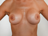Case 51 : Muscle splitting biplane breast augmentation, Mentor® anatomical implants 380 cc