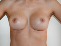 Case 53 : Muscle splitting biplane breast augmentation, Mentor® anatomical implants 380 cc