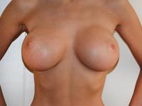 Case 54 : Muscle splitting biplane breast augmentation, Mentor® anatomical implants 430 cc