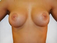 Case 56 : Muscle splitting biplane breast augmentation, Mentor® anatomical implants 330 cc