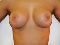 Case 56 : Muscle splitting biplane breast augmentation, Mentor® anatomical implants 330 cc