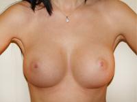 Case 60 : Muscle splitting biplane breast augmentation, Mentor® anatomical implants 380 cc