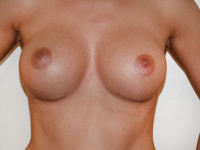 Case 61: Muscle splitting biplane breast augmentation with left internal mastopexy, Mentor® anatomical implants 380 cc