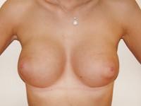 Case 62 : Muscle splitting biplane breast augmentation, Mentor® anatomical implants 330 cc