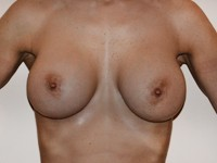 Case 66 : Muscle splitting biplane breast augmentation with left internal mastopexy, Mentor® anatomical implants 390 cc