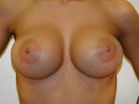 Case 69 : Muscle splitting biplane breast augmentation with internal mastopexy, Mentor® anatomical implants 390 cc