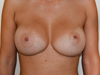 Case 72 : Muscle splitting biplane breast augmentation with internal mastopexy, Mentor® anatomical implants 380 cc