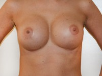 Case 74 : Preoperative : Submuscular breast augmentation, Mentor® round implants 350 cc. Postoperative : Muscle splitting biplane breast augmentation, Mentor® anatomical implants 545 cc