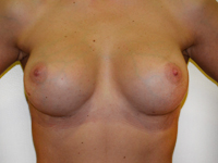 Case 77 : Muscle splitting biplane breast augmentation, Mentor® anatomical implants 380 cc